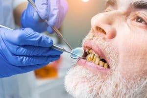 Meth mouth is the dental effects of meth abuse. Individuals experience tooth decay, rotting gums and other side effects that can worsen overtime.